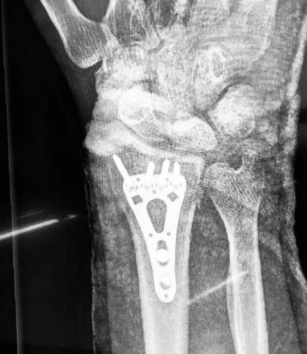Post-surgery x-ray of my distal radius fracture showing plate and screws