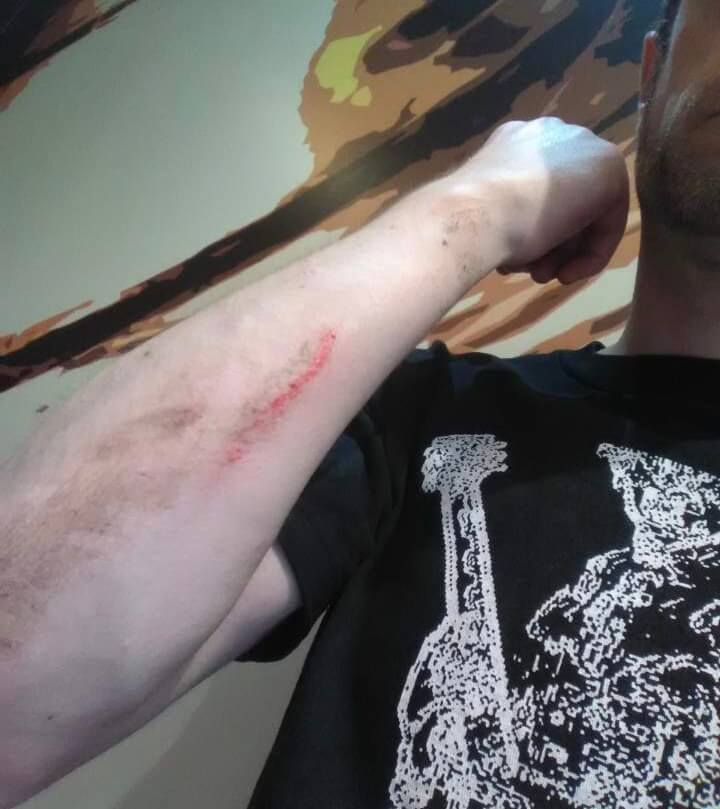 Cut on my arm after crashing my Youbike
